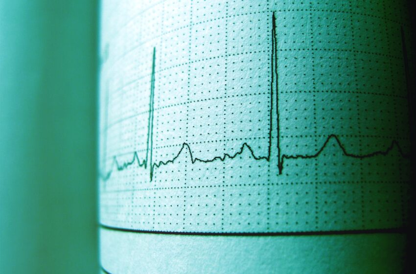 Cukrinis diabetas ir širdies ligos: kuo susiję?